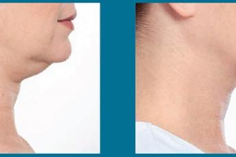 Belkyra kezelés előtt és után