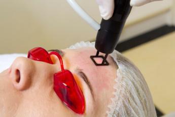 Mikropixeles bőrmegújítás lézerrel
