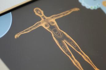 UltraContour kezelés - végleges zsírbontás fókuszált ultrahanggal