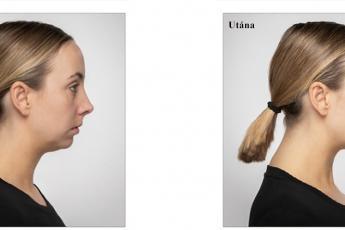 VOLUX arcfeltöltés előtt-után